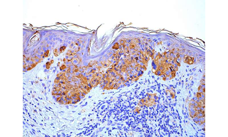 Penn researchers identify new treatment target for melanoma
