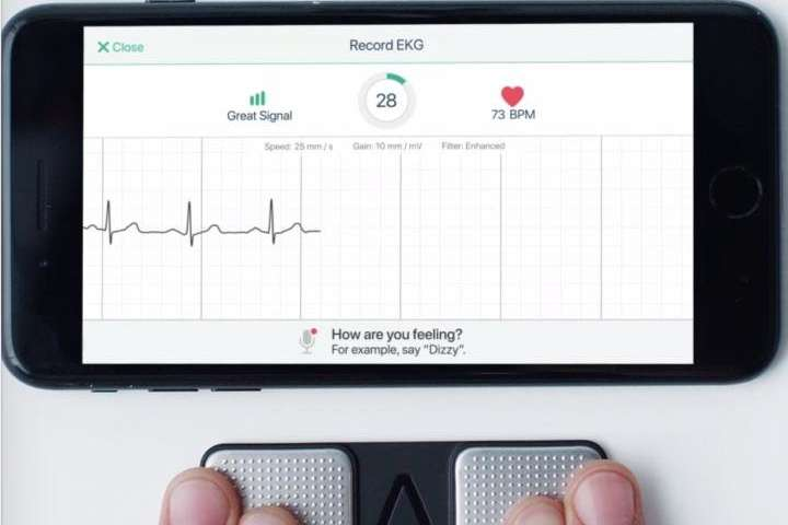 Phone app effectively identifies potentially fatal heart attacks with near accuracy of medical ECG