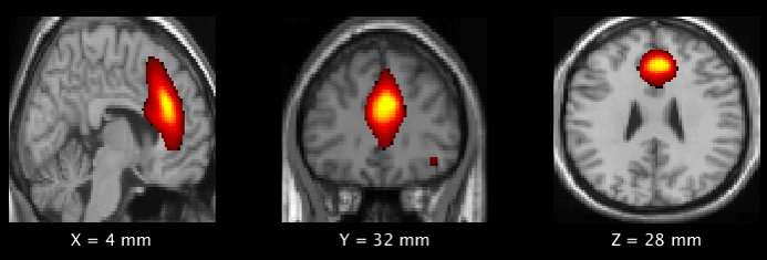 Football Affects Youth Brain >> Playing Youth Football Could Affect Brain Development