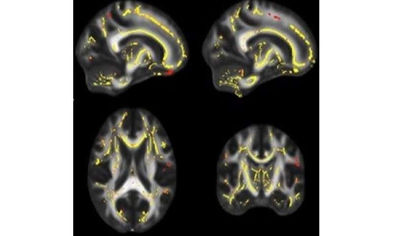 Poor fitness linked to weaker brain fiber, higher dementia risk