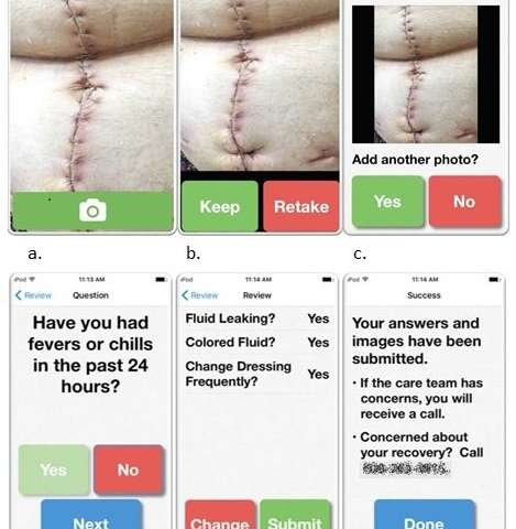 Postoperative wound monitoring app can reduce readmissions and improve patient care