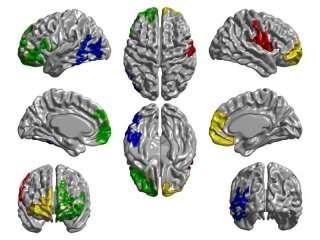 Progression of Parkinson's disease follows brain connectivity