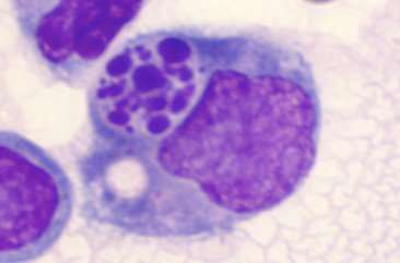 Proper burial of dead cells limits inflammation
