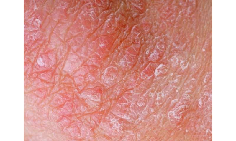 Psoriasis linked to increased risk for inflammatory bowel disease