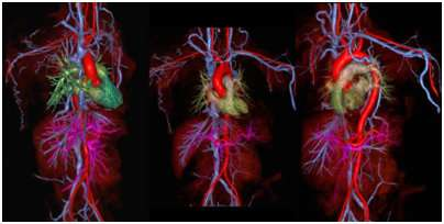 Rapid blood vessel scan tolerated by claustrophobic patients unable to stand longer tests