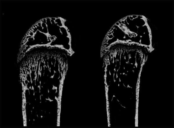 Reversing severe bone loss