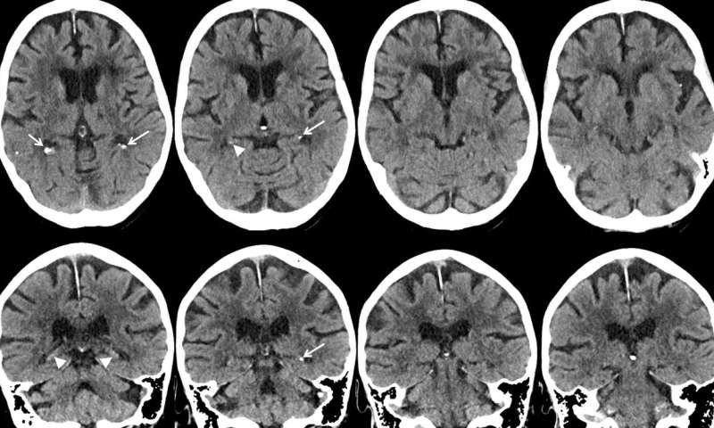 Smoking and diabetes linked to brain calcifications
