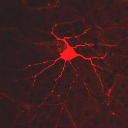 Some of retina's light-sensing cells may have ancient roots