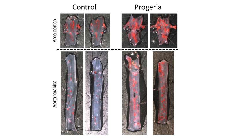 Spanish scientists discover the cause of accelerated atherosclerosis and premature death in progeria