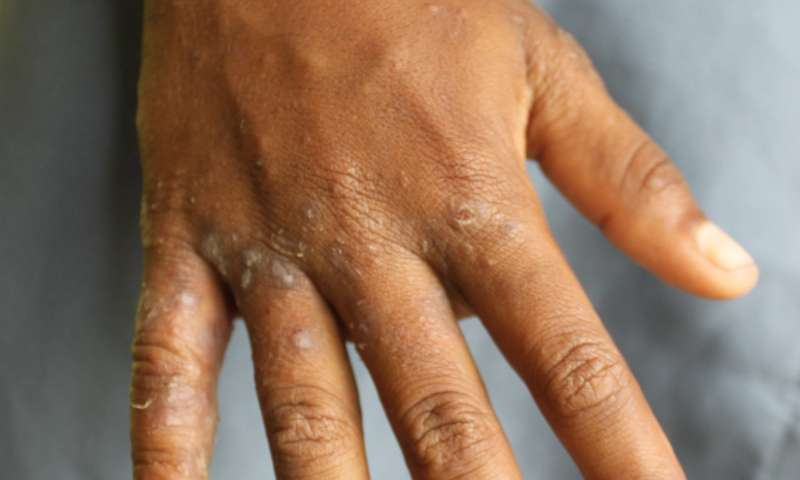 Speed up public health decisions on scabies by skipping full-body exams, study says