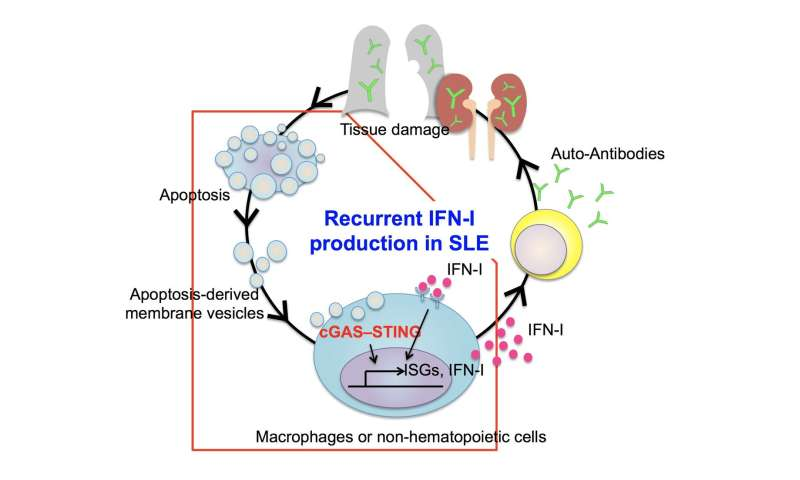 Step-by-step account of systemic lupus erythematosus development revealed