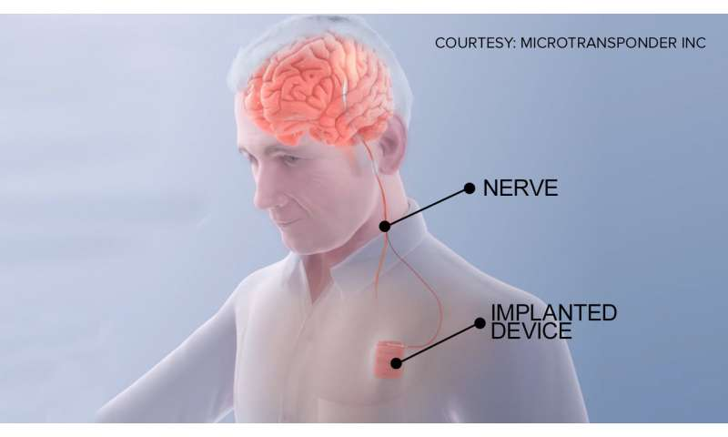 Stroke rehab study uses neurostimulation to 'rewire' the brain, improve recovery