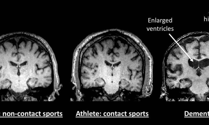 Study of 21 retired NFL and NHL players doesn't find evidence of early onset dementia