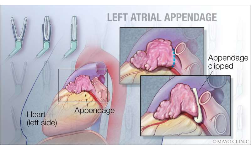 To have or not to have... your left atrial appendage closed