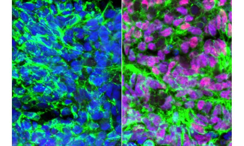 UCLA scientists make cells that enable the sense of touch