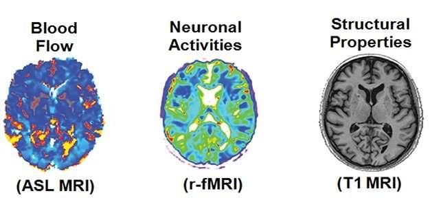 Unique brain 'fingerprint' can predict drug effectiveness