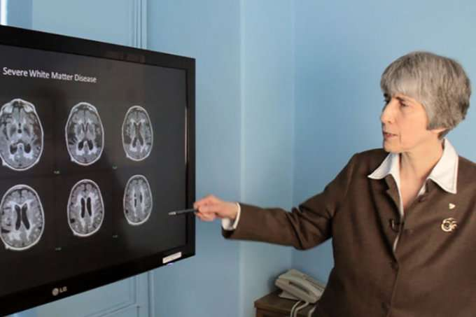 U of T researchers demonstrate safe and non-invasive way to open blood-brain barrier in patients with Alzheimer's disease