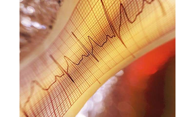 USPSTF: insufficient evidence to screen for atrial fibrillation