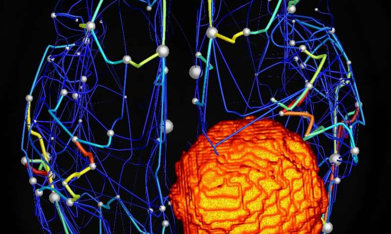 Virtual brain could aid surgical planning
