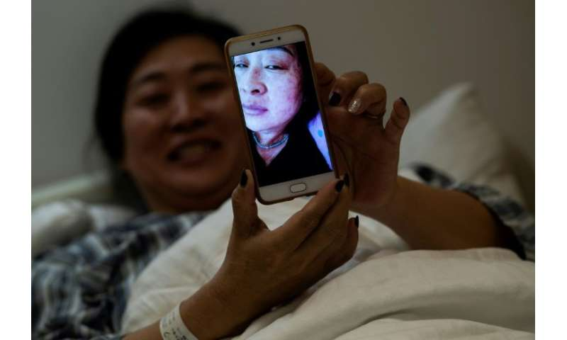 Wang Deyun says her skin infection, caused by a reaction to modern medicine for blood pressure, is clearing up after a course of
