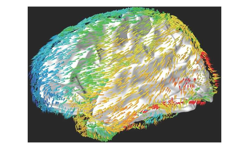 Waves move across the human brain to support memory