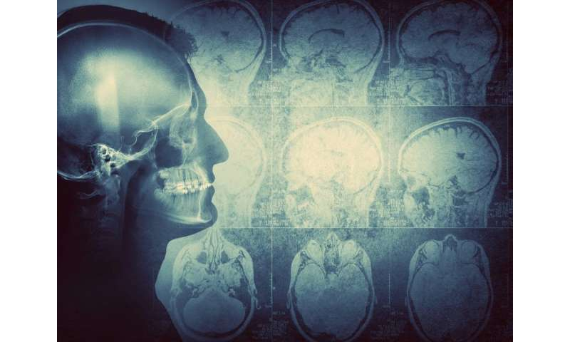 When the body attacks the brain: Immune system often to blame for encephalitis, study finds