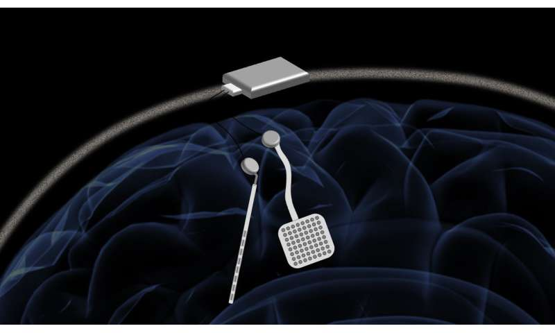Wireless 'pacemaker for the brain' could offer new treatment for neurological disorders