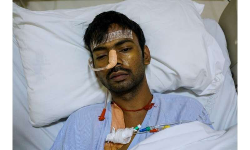 Yogesh Kumar, 29, wheezes after life-saving surgery to remove a diseased lung