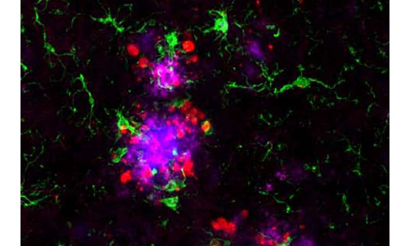 Alzheimer's missing link ID'd, answering what tips brain's decline