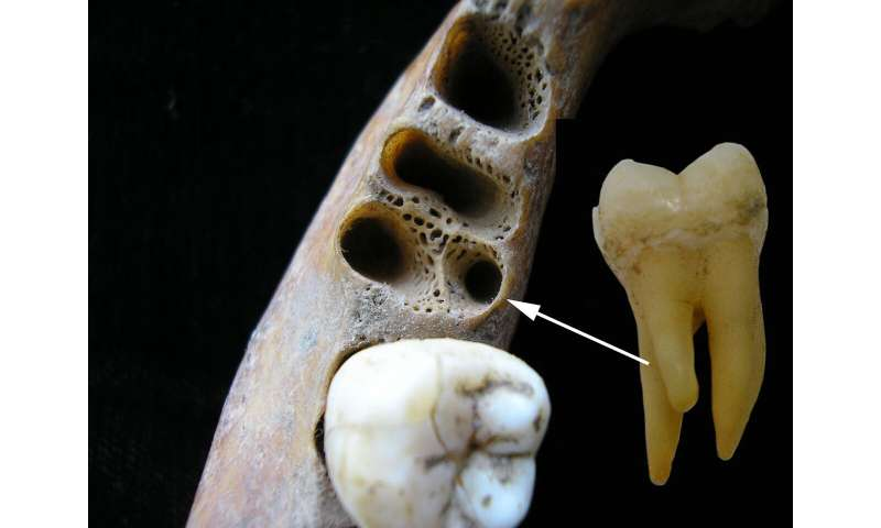 Old molars point to interbreeding between archaic people and Homo sapiens in Asia