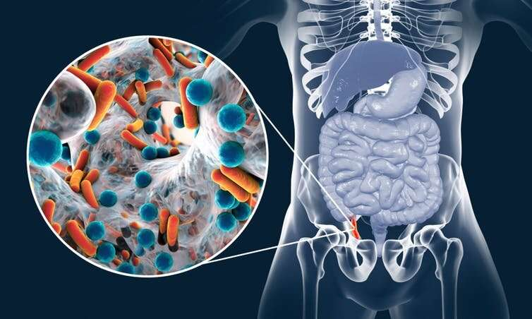 Appendix removal: does it really increase your risk of getting Parkinson's disease?