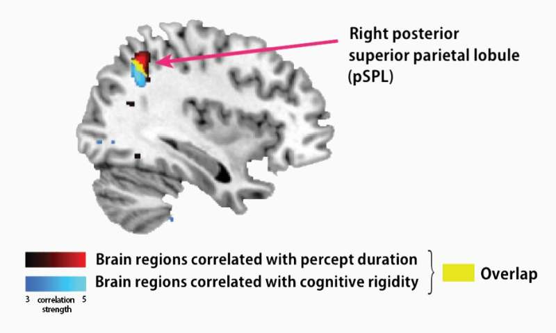 Brain anatomy links cognitive and perceptual symptoms in autism