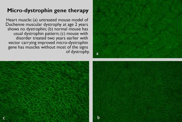 Gene therapy cassettes improved for muscular dystrophy