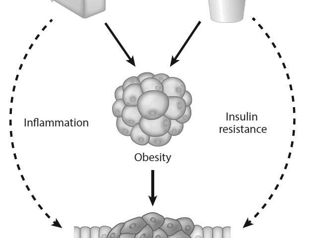 Increasing evidence of a strong connection between sugar and cancer