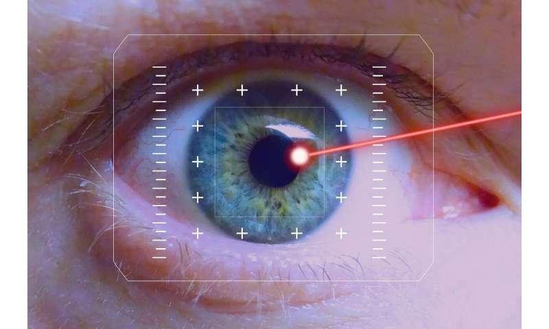 laser eye surgery