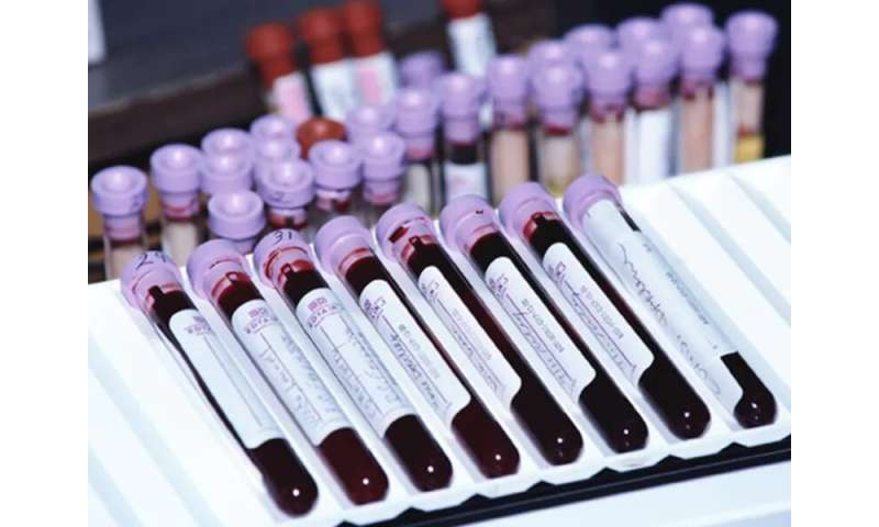 Most americans have never had an HIV test: CDC