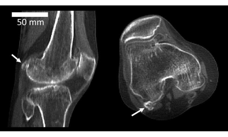 Mystery arthritis-linked knee bone three times more common than 100 years ago