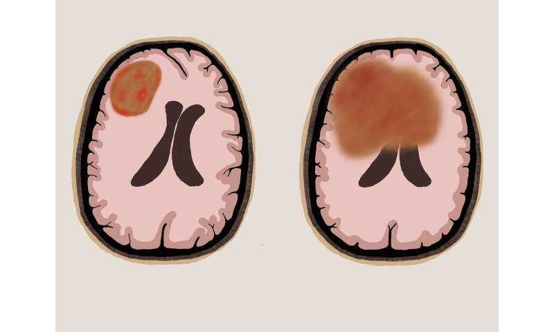 New evidence supports surgery for rare type of brain lymphoma