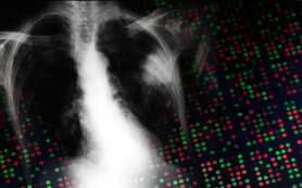 ZEB1 throttles therapeutic target, protecting KRAS-mutant lung cancer