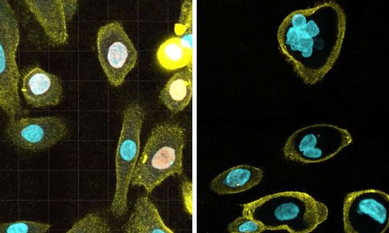 Researchers discover new cause of cell-aging