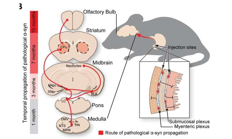 New research shows Parkinson's disease origins in the gut