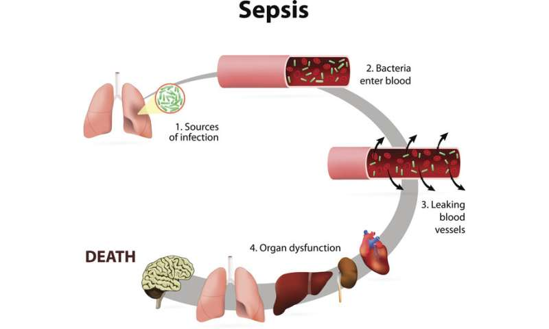 International team identifies potential therapeutic target for sepsis