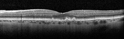 Researchers discover new biomarker for age-related macular degeneration