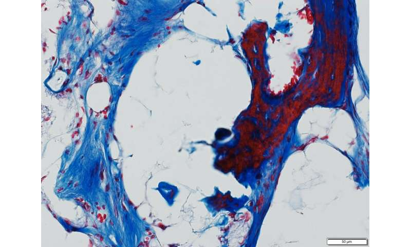 Johns Hopkins researchers define cells used in bone repair