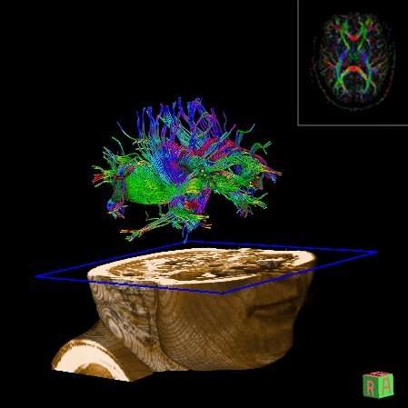 Neuroscientist probes sleep's role in learning and memory