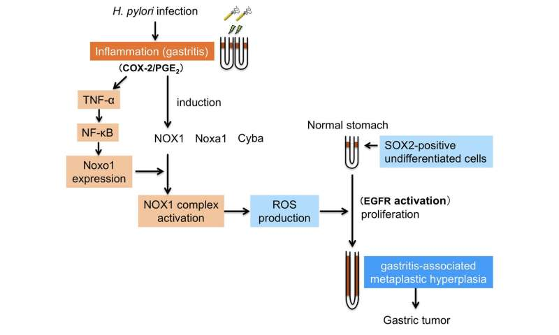 New study explains how inflammation causes gastric cancer