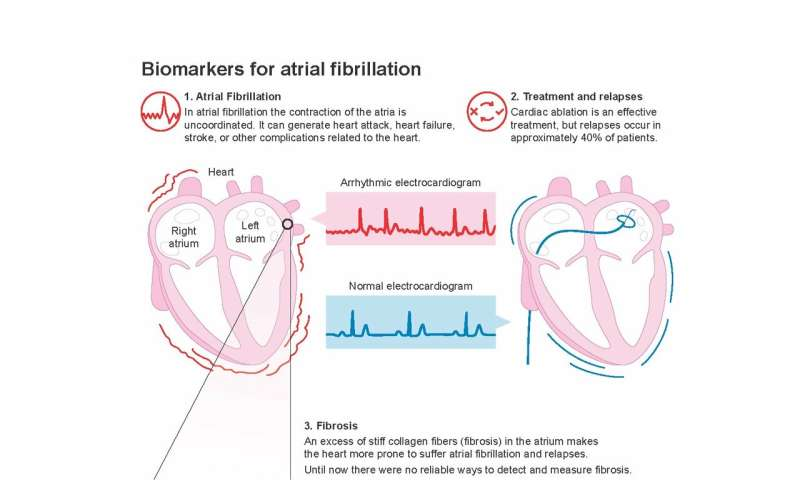 New study identifies biomarkers to predict the risk of atrial fibrillation
