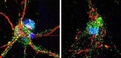 Researchers identify brain protein crucial to recovery from stroke
