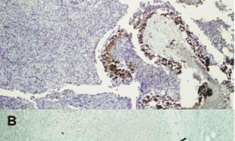 Researchers survey immune molecules found inside mycetoma lesions