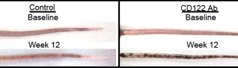 New treatment in the works for disfiguring skin disease, vitiligo